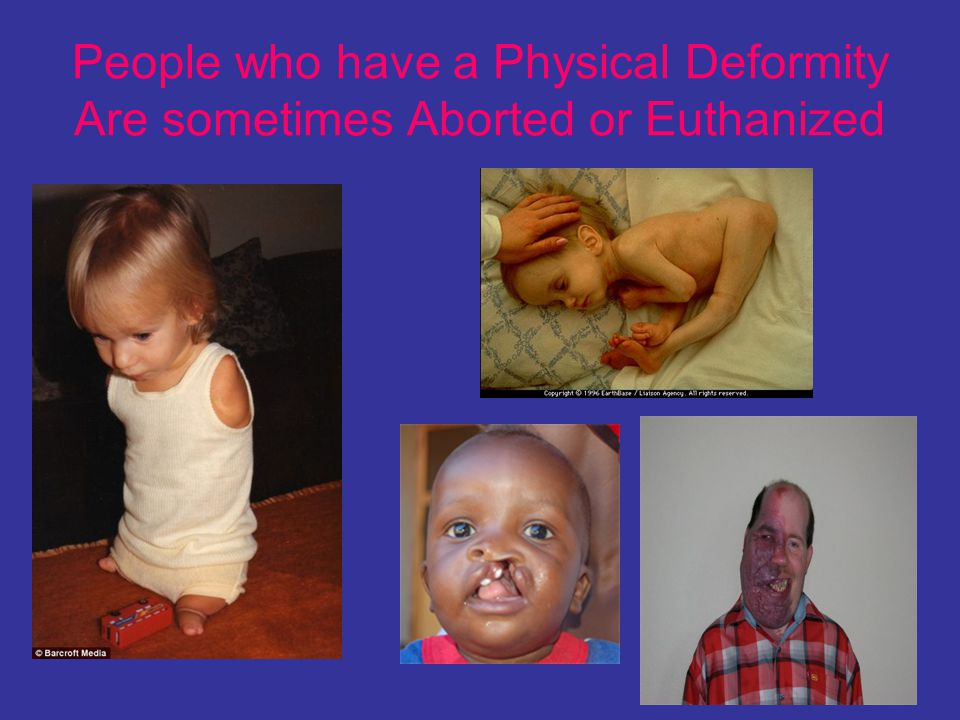 People who have a Physical Deformity Are sometimes Aborted or Euthanized
