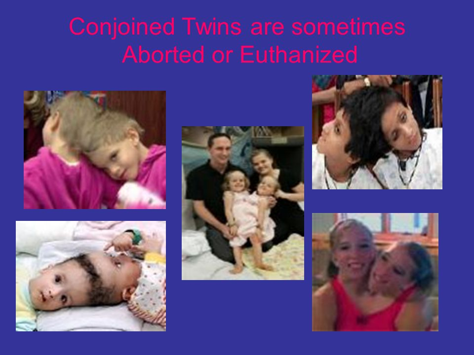 Conjoined Twins are sometimes Aborted or Euthanized