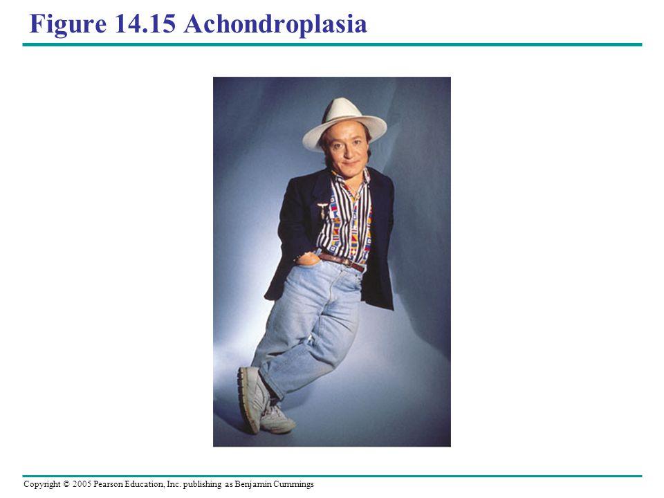 Figure 14.15 Achondroplasia