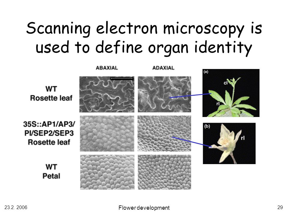 Scanning electron microscopy is used to define organ identity