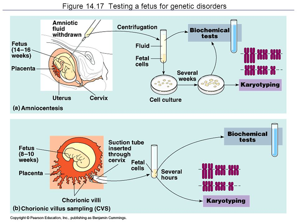 Figure 14.17 Testing a fetus for genetic disorders