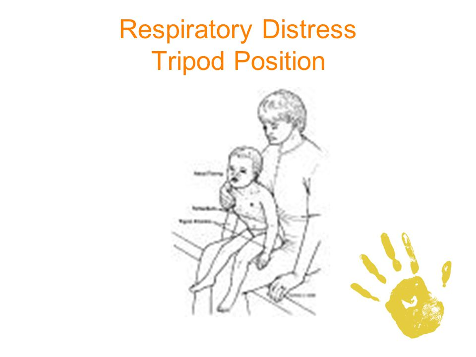Respiratory Distress Tripod Position