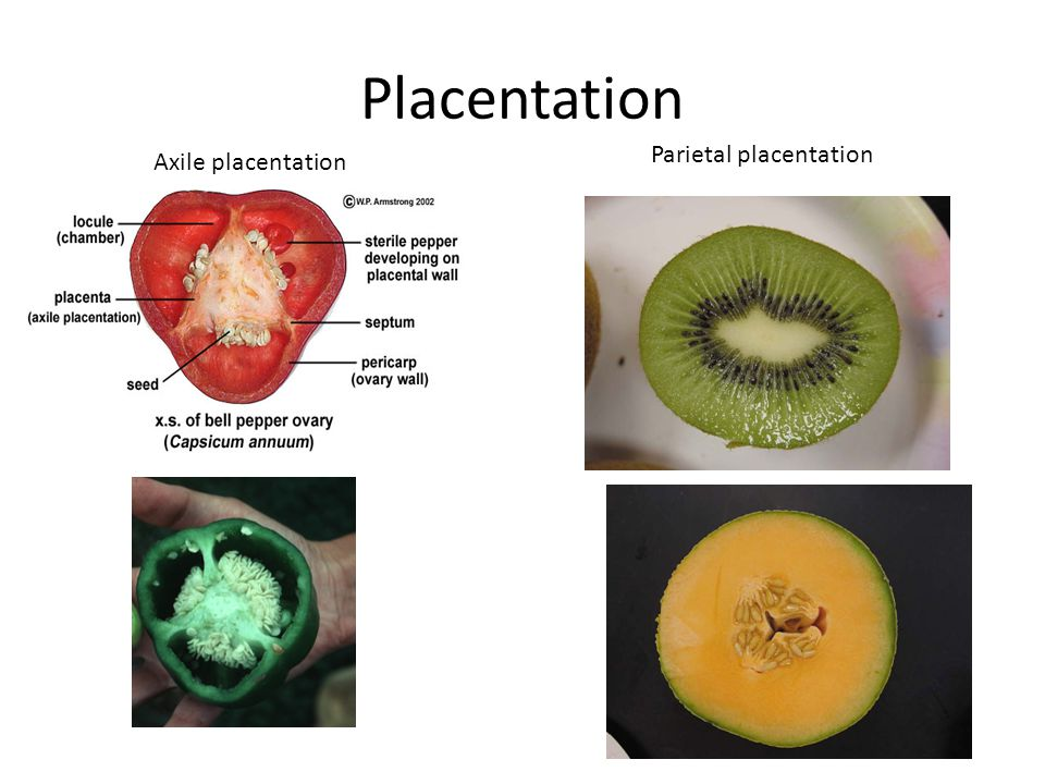 Placentation Parietal placentation Axile placentation