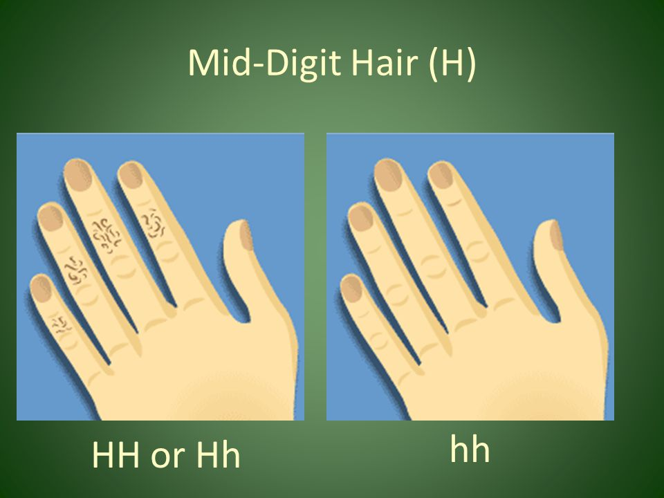 Mid-Digit Hair (H) hh HH or Hh