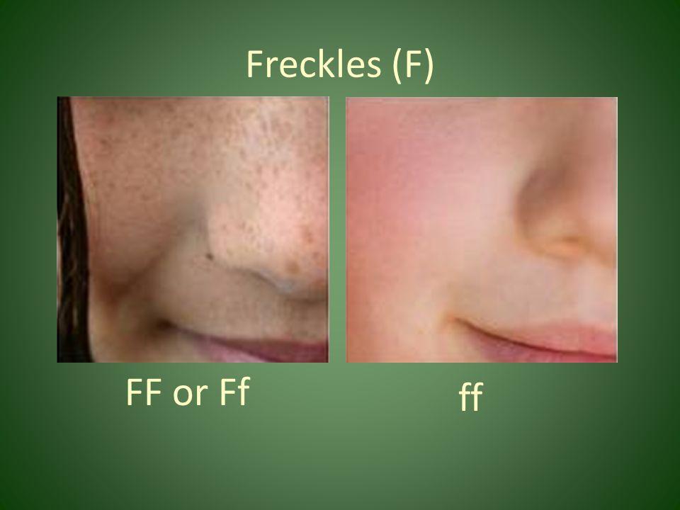 Freckles (F) FF or Ff ff