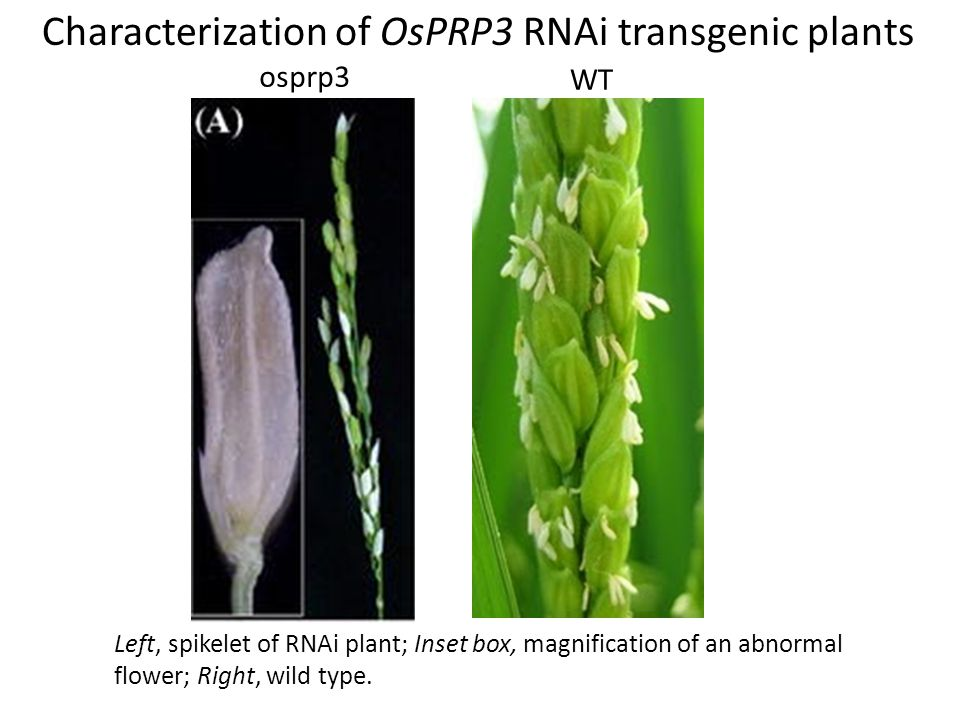 Characterization of OsPRP3 RNAi transgenic plants