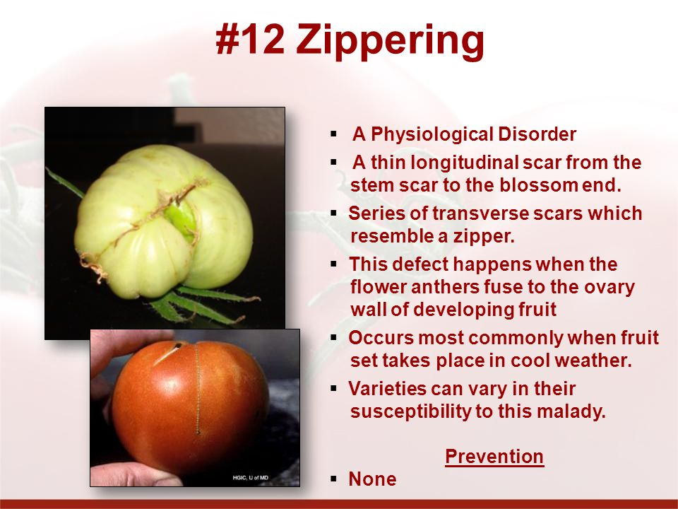 #12 Zippering A Physiological Disorder