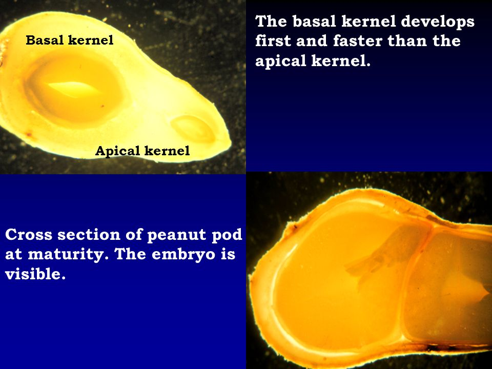 The basal kernel develops first and faster than the apical kernel.