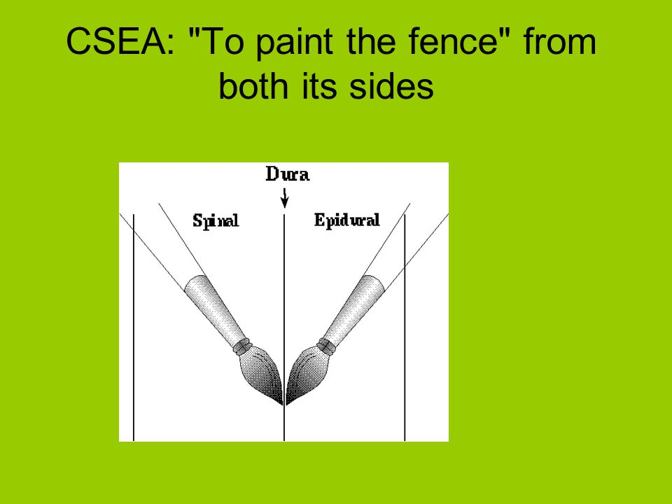 CSEA: To paint the fence from both its sides