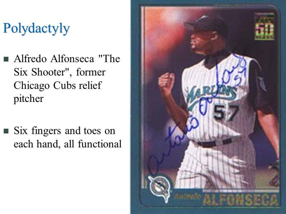 Polydactyly Alfredo Alfonseca The Six Shooter , former Chicago Cubs relief pitcher.