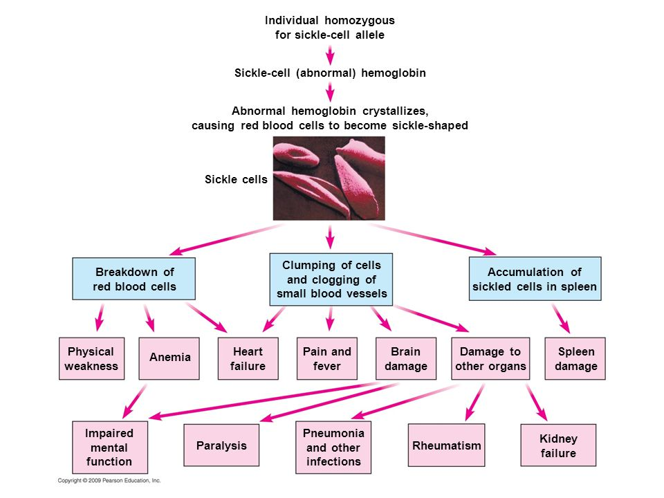Individual homozygous for sickle-cell allele