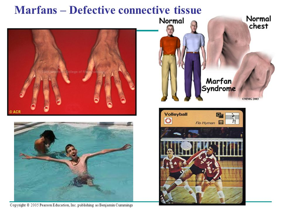 Marfans – Defective connective tissue