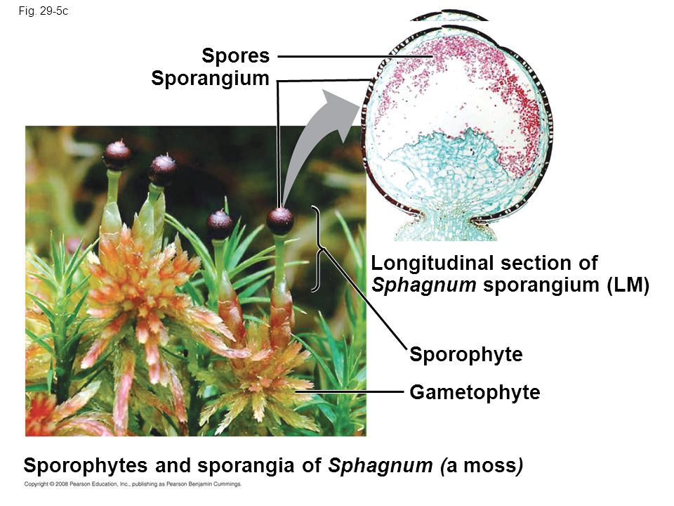 Longitudinal section of Sphagnum sporangium (LM)