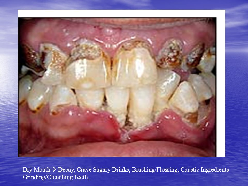 Dry Mouth Decay, Crave Sugary Drinks, Brushing/Flossing, Caustic Ingredients