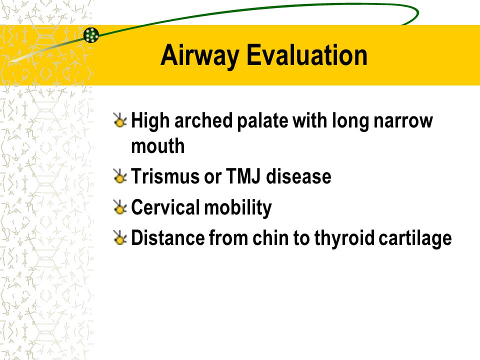 Airway Evaluation High arched palate with long narrow mouth