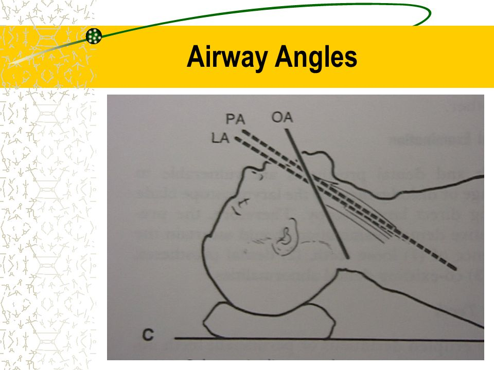Airway Angles