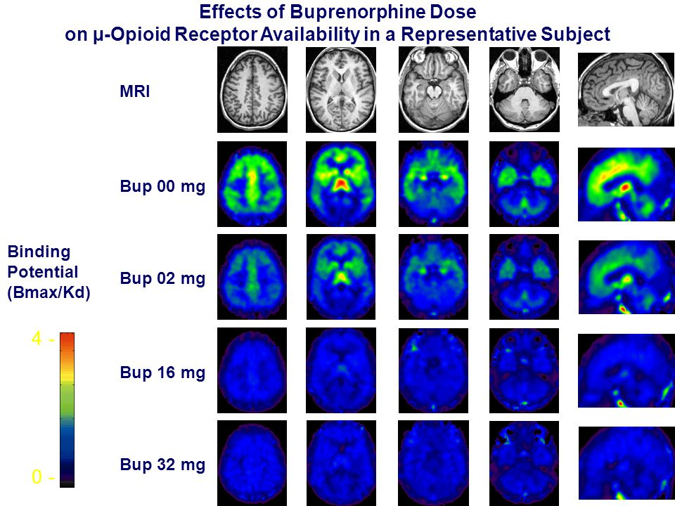 Effects of Buprenorphine Dose on µ-Opioid Receptor Availability in a Representative Subject