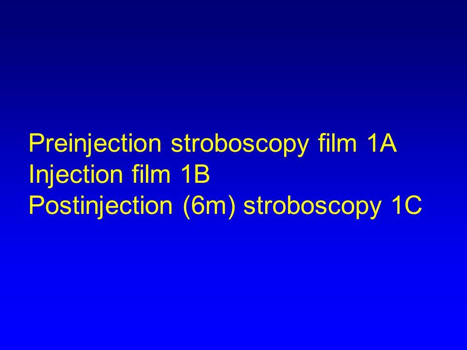 Preinjection stroboscopy film 1A Injection film 1B Postinjection (6m) stroboscopy 1C