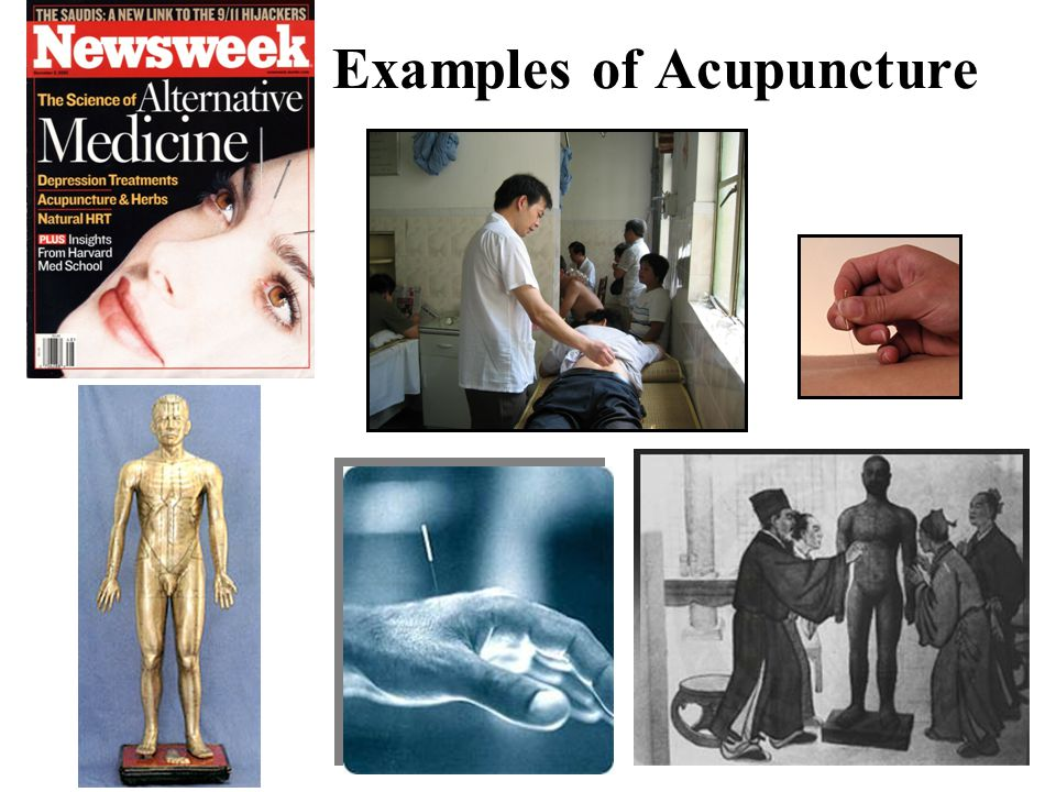 Examples of Acupuncture