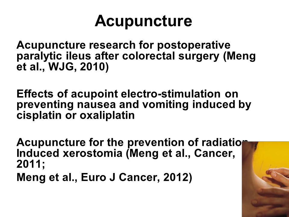 Acupuncture Acupuncture research for postoperative paralytic ileus after colorectal surgery (Meng et al., WJG, 2010)