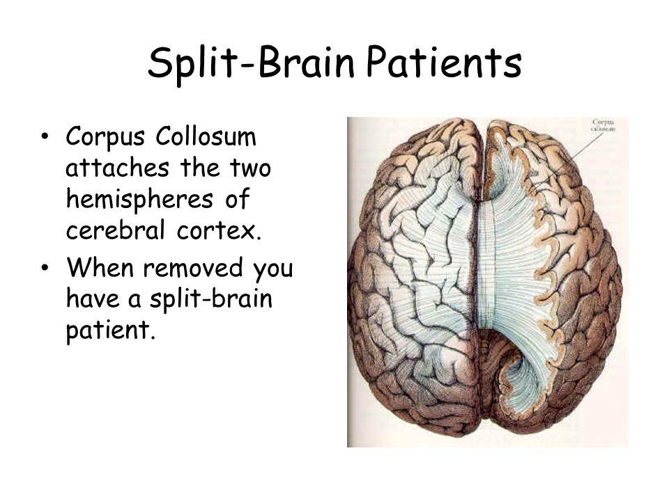 Split-Brain Patients Corpus Collosum attaches the two hemispheres of cerebral cortex.