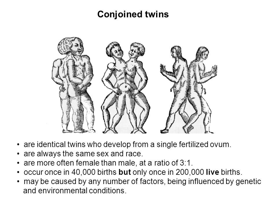 Conjoined twins are identical twins who develop from a single fertilized ovum. are always the same sex and race.