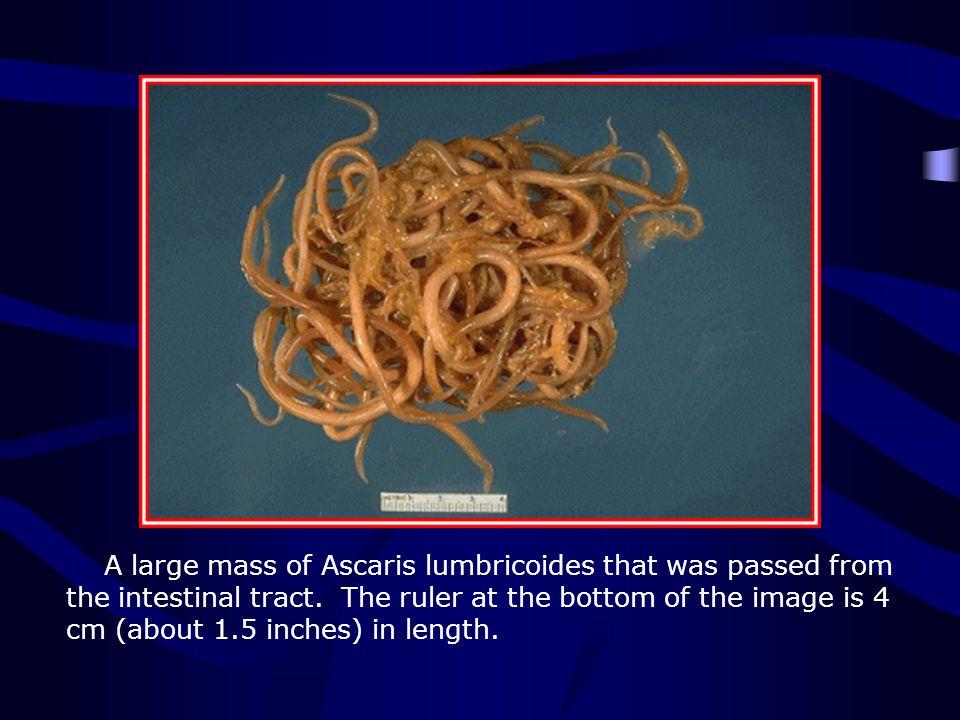 http://www.biosci.ohio-state.edu/~parasite/ascaris.html