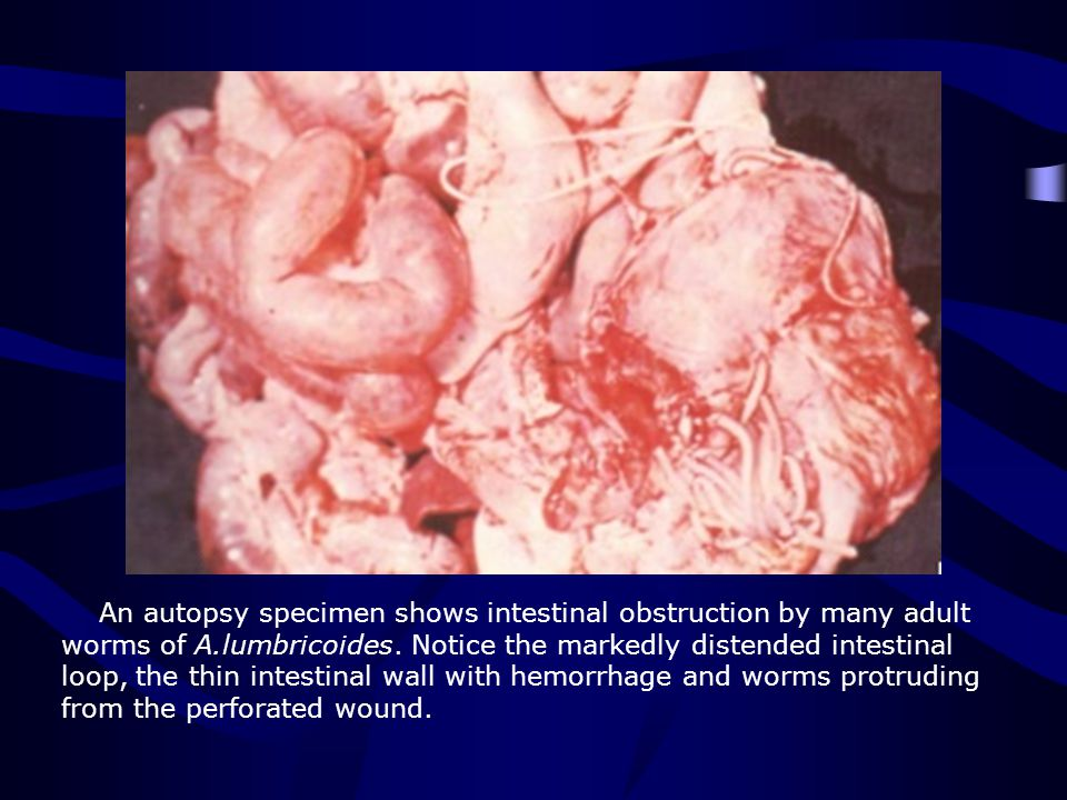 An autopsy specimen shows intestinal obstruction by many adult worms of A.lumbricoides.