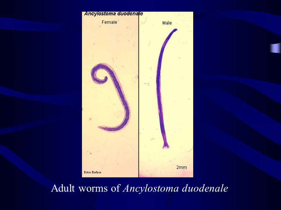Adult worms of Ancylostoma duodenale