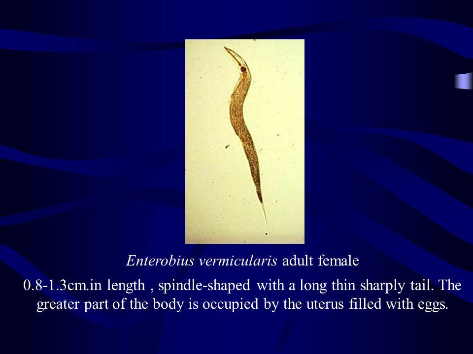 Enterobius vermicularis adult female