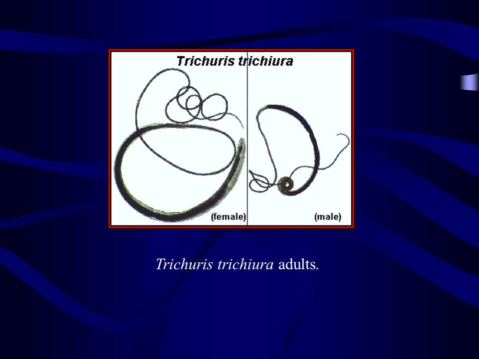 Trichuris trichiura adults.