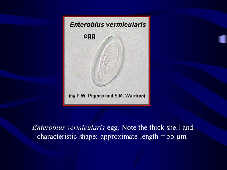 http://www.biosci.ohio-state.edu/~parasite/enterobius.html