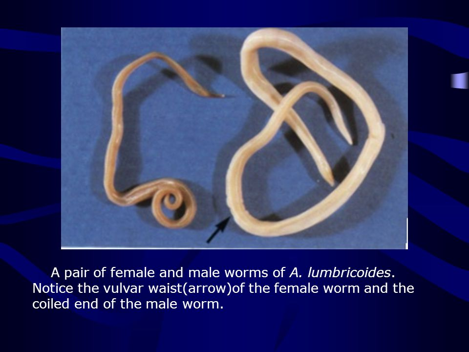 A pair of female and male worms of A. lumbricoides