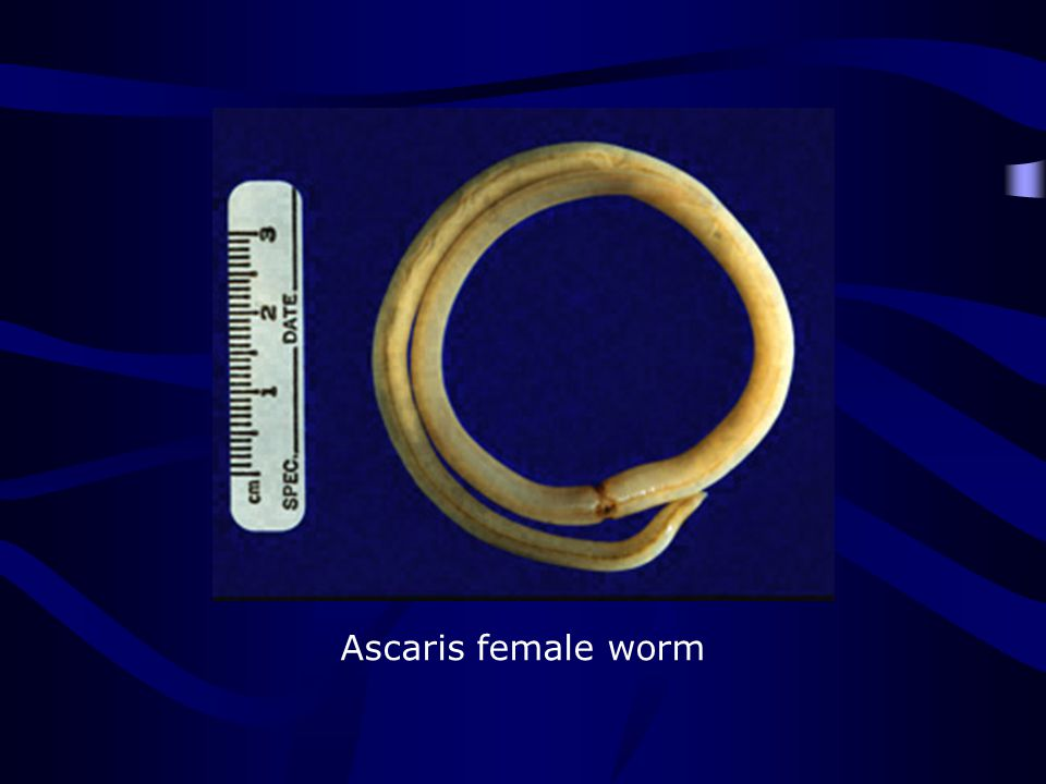 http://www.dpd.cdc.gov/dpdx/HTML/Search_Choices.htm Ascaris female worm