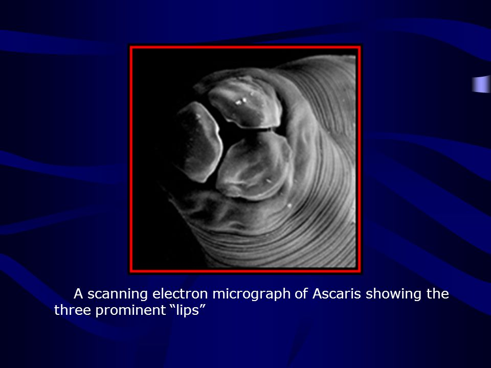 http://www.biosci.ohio-state.edu/~parasite/ascaris.html A scanning electron micrograph of Ascaris showing the three prominent lips