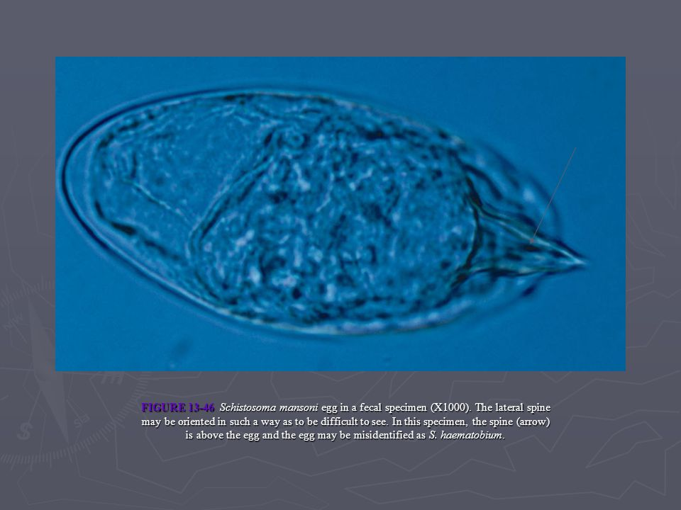 FIGURE 13-46 Schistosoma mansoni egg in a fecal specimen (X1000)