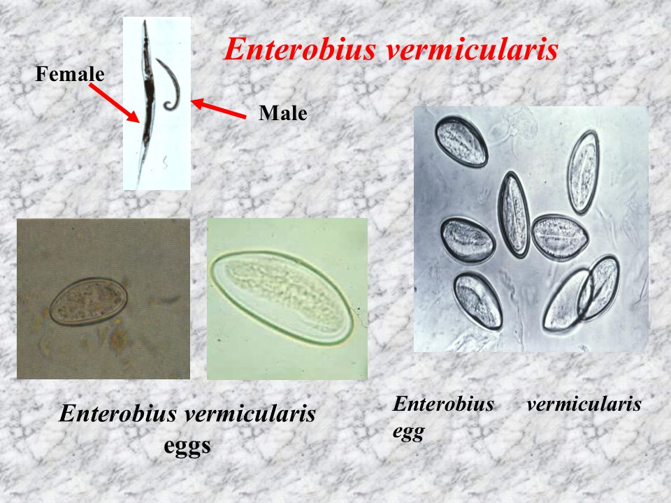 Enterobius vermicularis Enterobius vermicularis eggs