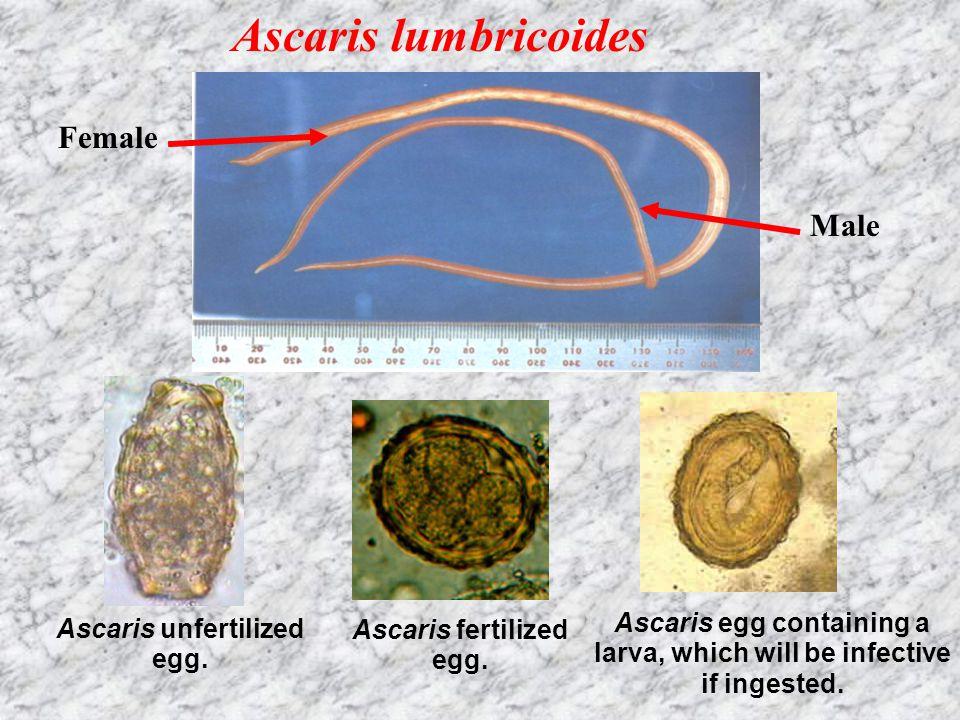 Ascaris lumbricoides Female Male