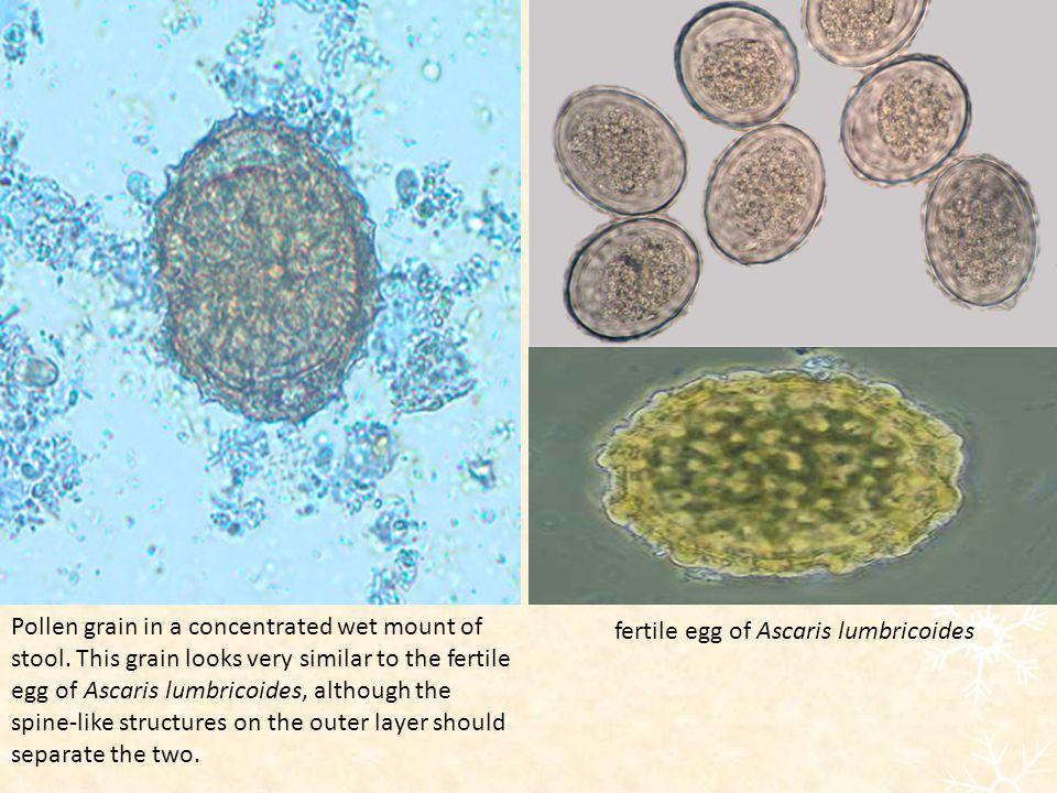 Pollen grain in a concentrated wet mount of stool