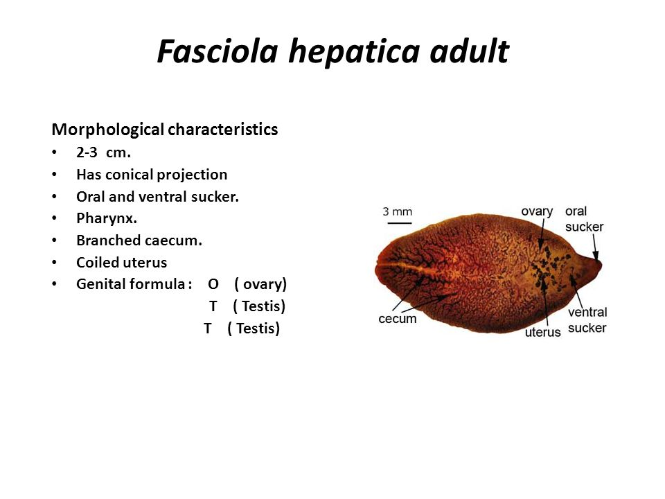 Fasciola hepatica adult