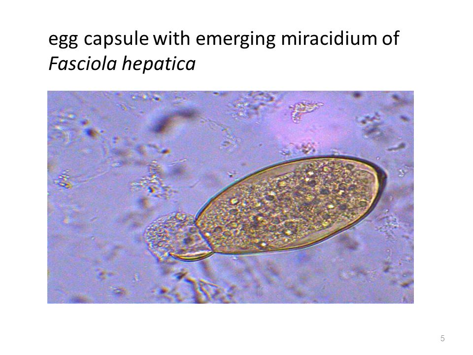 egg capsule with emerging miracidium of Fasciola hepatica