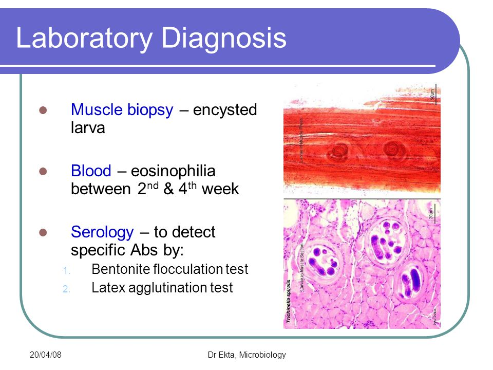Laboratory Diagnosis Muscle biopsy – encysted larva