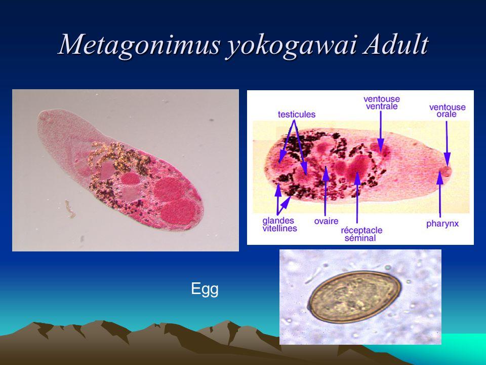 Metagonimus yokogawai Adult