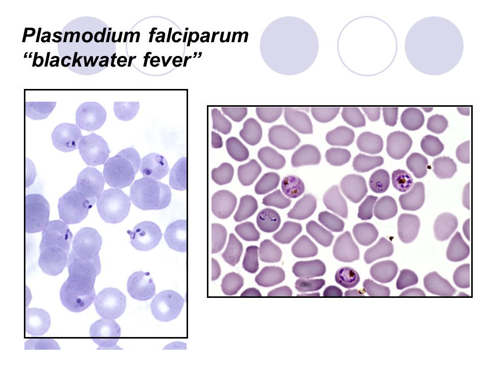 Plasmodium falciparum blackwater fever