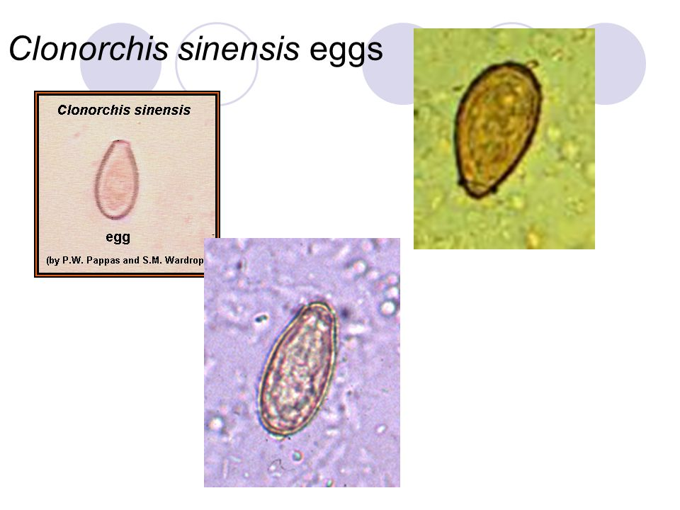 Clonorchis sinensis eggs