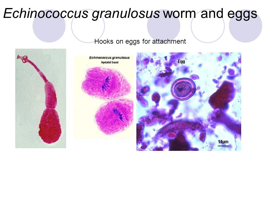 Echinococcus granulosus worm and eggs