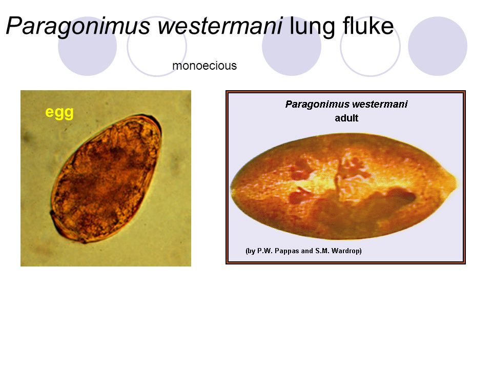 Paragonimus westermani lung fluke
