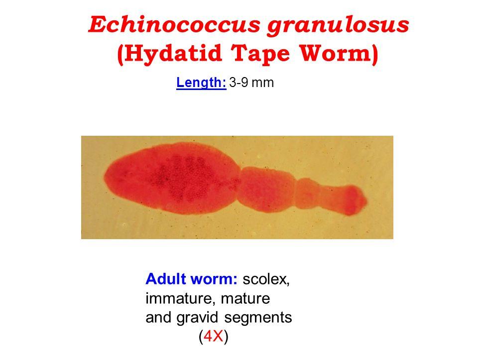 Echinococcus granulosus (Hydatid Tape Worm)