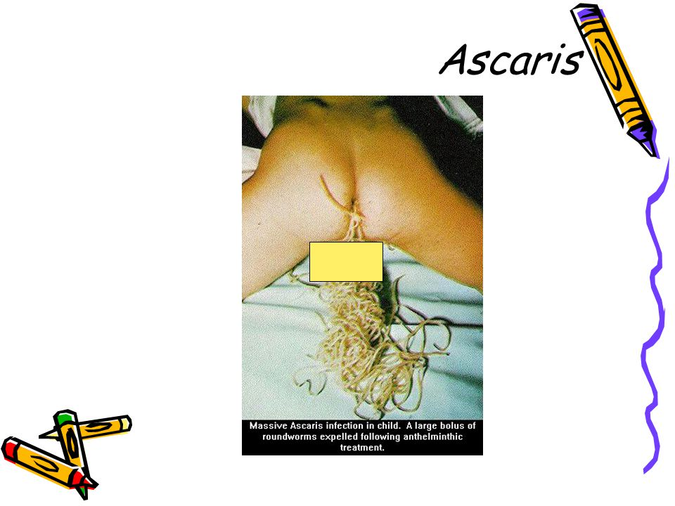 Ascaris 37
