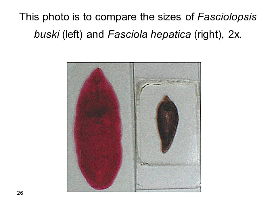 This photo is to compare the sizes of Fasciolopsis buski (left) and Fasciola hepatica (right), 2x.